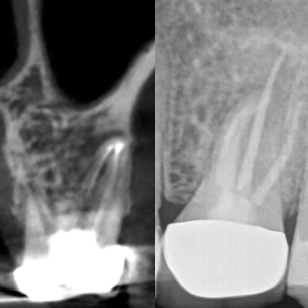 4-Month Recall Post-GentleWave® Procedure CBCT and Radiograph
