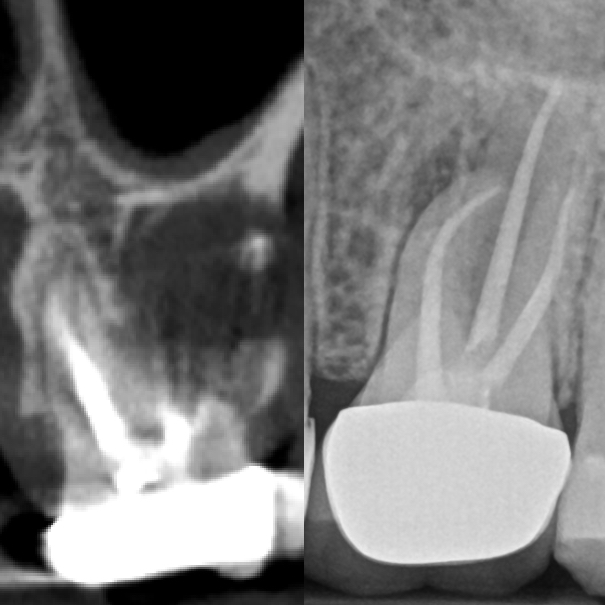 Pre-GentleWave® Procedure CBCT and Radiograph