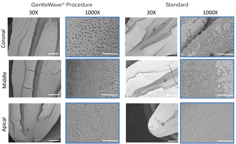 Efficiency of the GentleWave® System in Removing Smear Layer and Tissue Debris from the Root Canal System