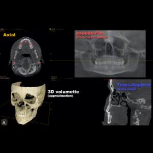 The ABC's of CBCT
